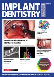 IDT – Implant Dentistry Today issue IDT – Implant Dentistry Today
