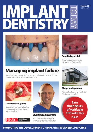IDT – Implant Dentistry Today Preview